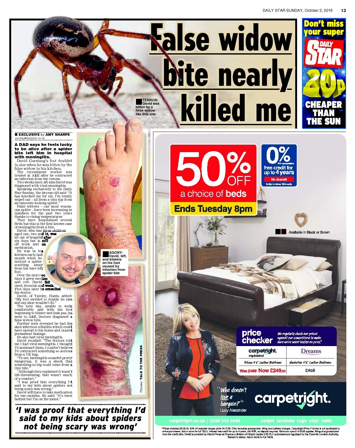 false-widow-bite-nearly-killed-me-daily-star-sunday-2-10-2016