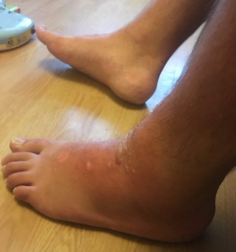 foot-7-september